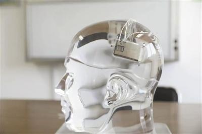 治疗癫痫给脑中植入反导系统